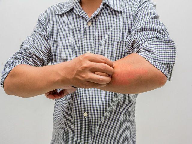 cuando una persona sufre de alergias