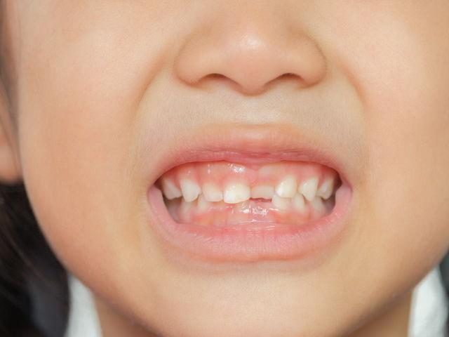 porque los niños rechinan los dientes mientras duermen